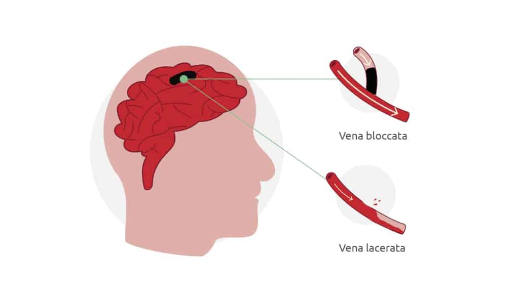 L'immagine mostra le cause di un ictus: un infarto cerebrale o un'emorragia cerebrale.