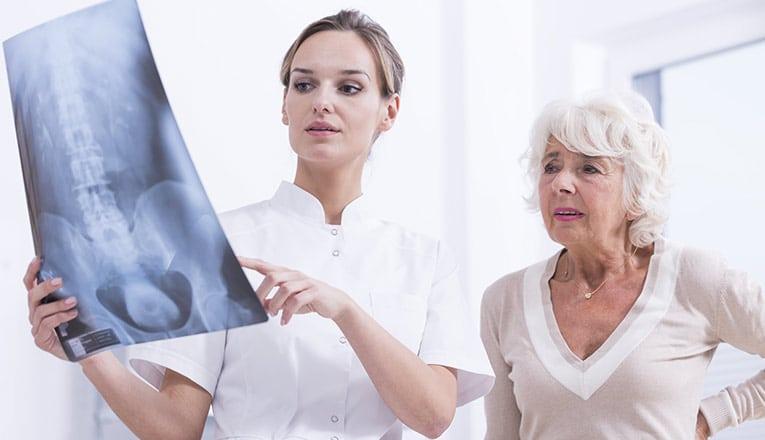 Un dottore mostra una risonanza magnetica a una signora con sintomi di artrosi alla schiena.