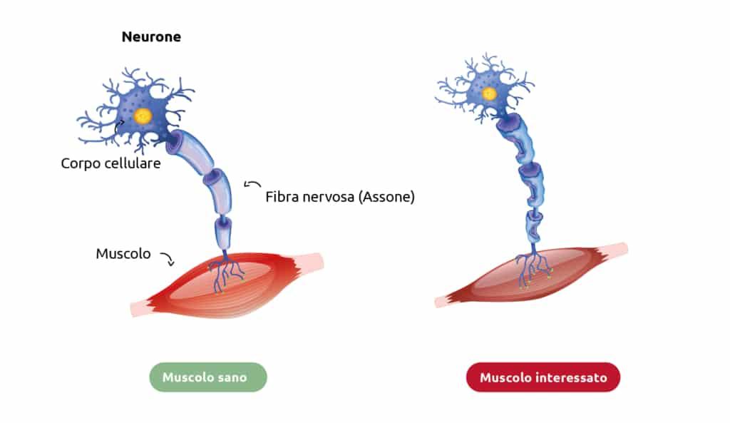 Rappresentazione schematica di un muscolo con SLA e di un muscolo sano.