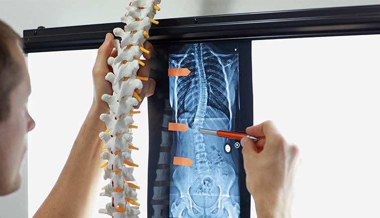 Un medico mostra una colonna vertebrale in posizione normale e una radiografia della colonna vertebrale di un adulto con sintomi di scoliosi.