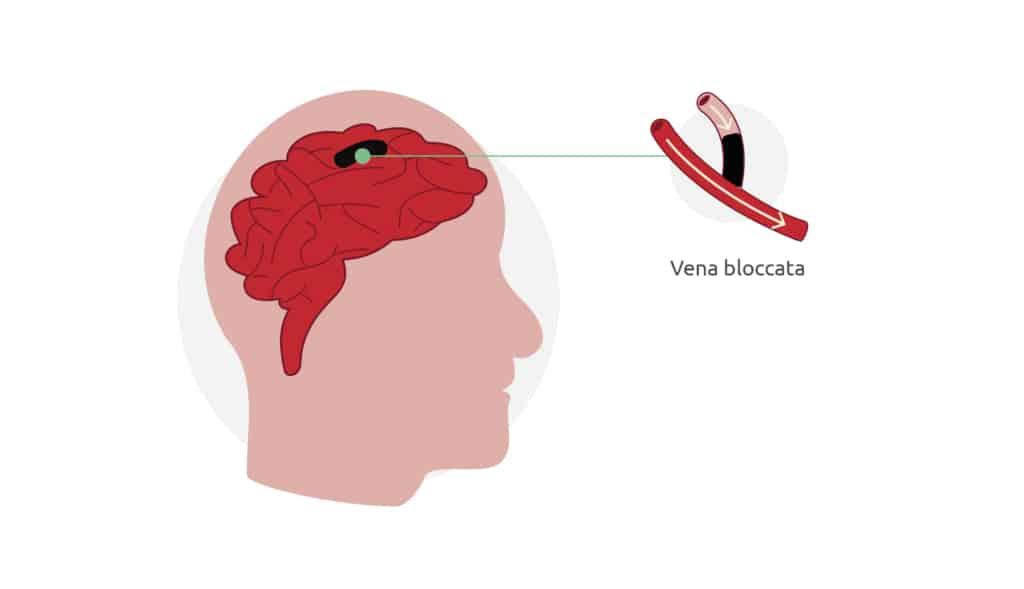 Un ictus si verifica quando un'arteria o una vena del cervello si blocca. Se l'ostruzione è momentanea parliamo di un TIA.