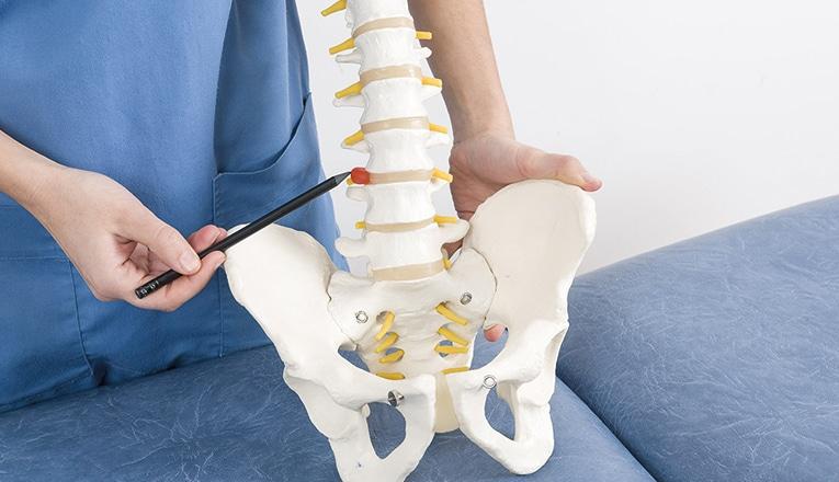 Il dottore indica un'ernia del disco nella parte posteriore della vertebra.